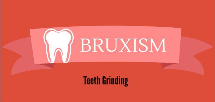What Is Bruxism & Its Causes – Infographic