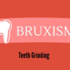 What Is Bruxism & Causes